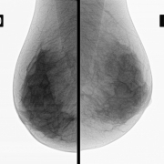 Capivasertib combined with paclitaxel improves survival of metastatic triple-negative breast cancer patients