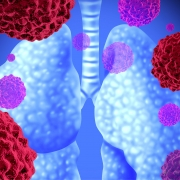 Selpercatinib-displays-efficacy-in-RET -fusion-positive-non-small-cell-lung-cancer